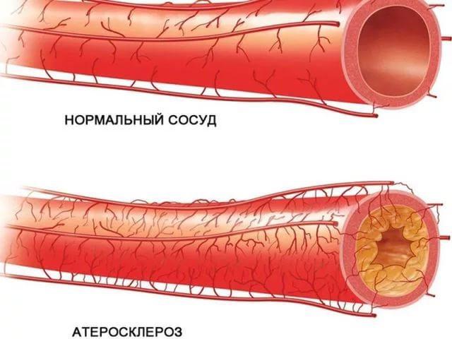 Холестерин крови норма 4 9