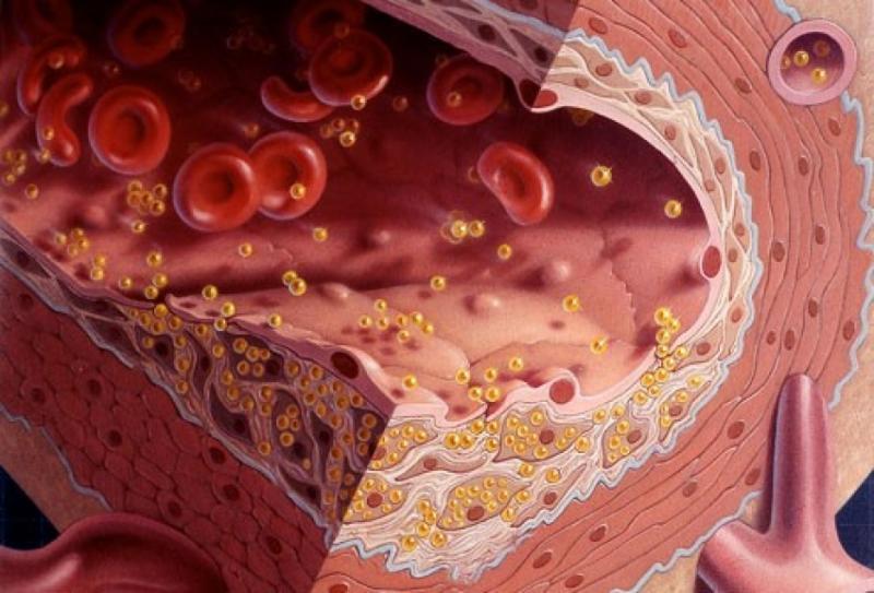 холестерин ЛПВП - холестерол ЛПНП - норма в крови у женщин