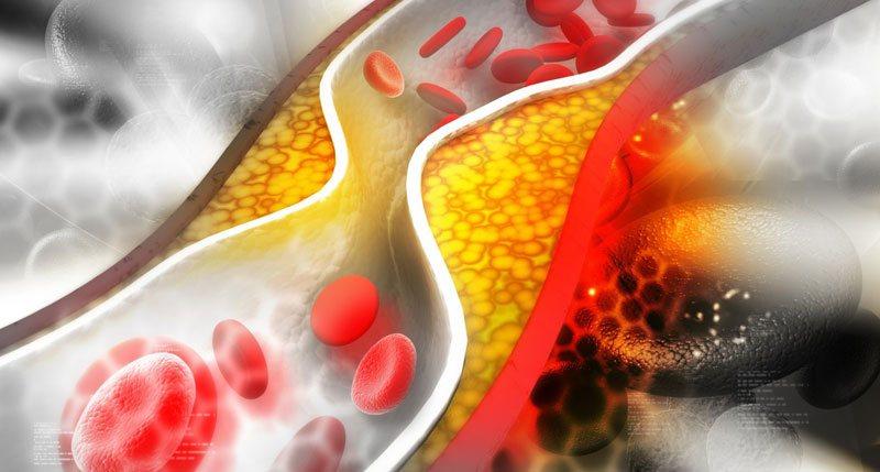 статины от холестерина вред и польза