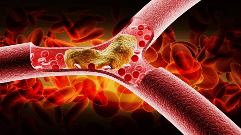 статины и холестерин