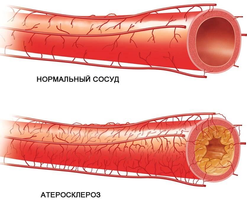 атеросклероз сосудов - что это такое