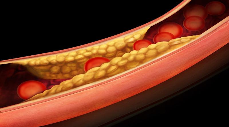 Причины развития атеросклероза как проявляются осложнения болезни
