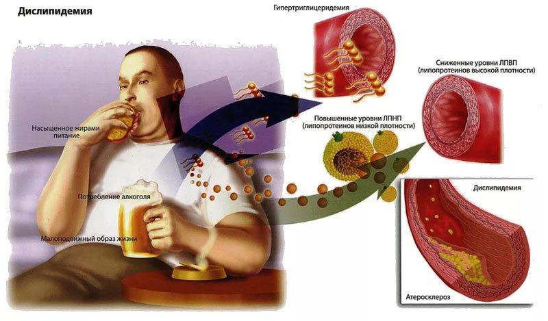 С чем связан повышенный холестерин